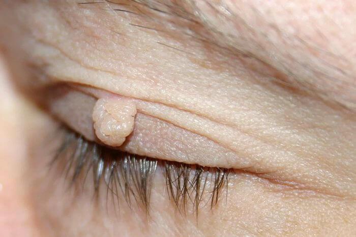 Diferencia de un Acrocordón y una Verruga