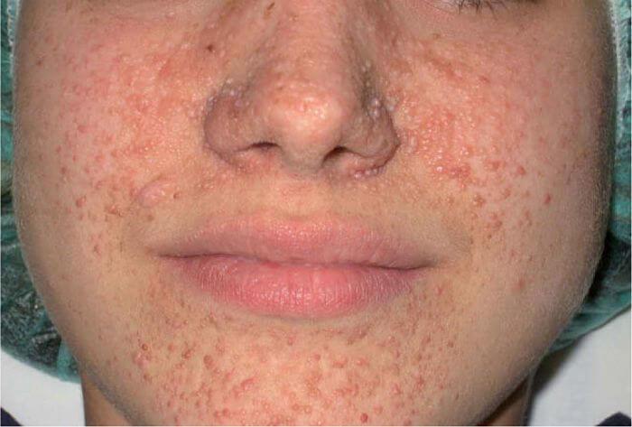 Síntomas del Adenoma Sebáceo