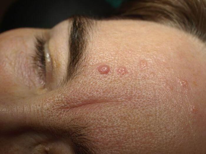 Tratamiento para el Adenoma Sebáceo