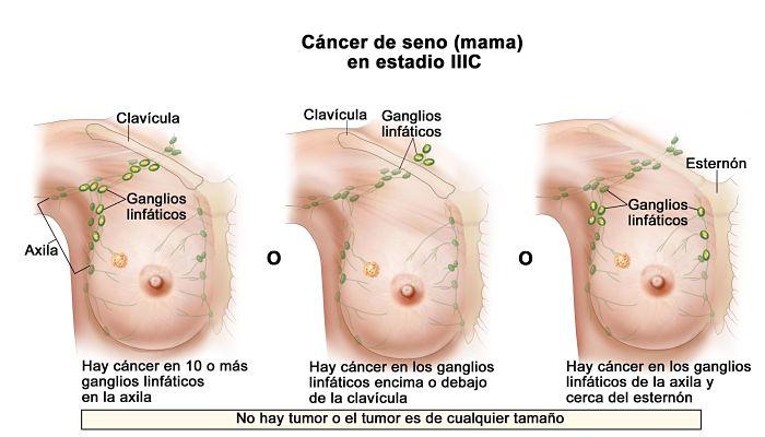 enfermedad de Paget de seno