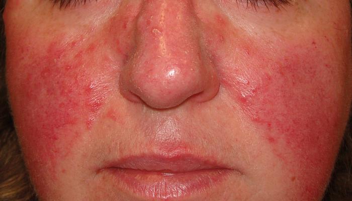 Rubefacción o enrojecimiento de la piel