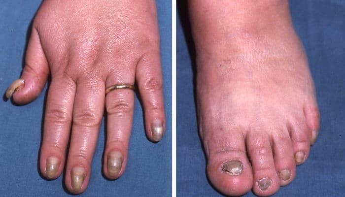 síndrome de Zinsser-Cole-Engman