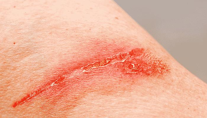 las Úlceras cutáneas