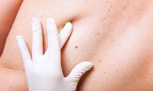 cancer del piel