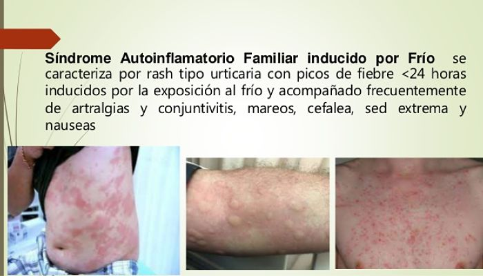 síndrome autoinflamatorio familiar inducido por frio