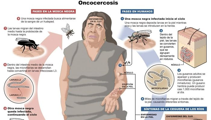 oncocercosis
