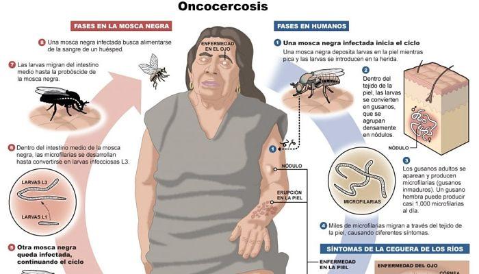 Oncocercosis: Definición, Causas, Síntomas, Tratamiento
