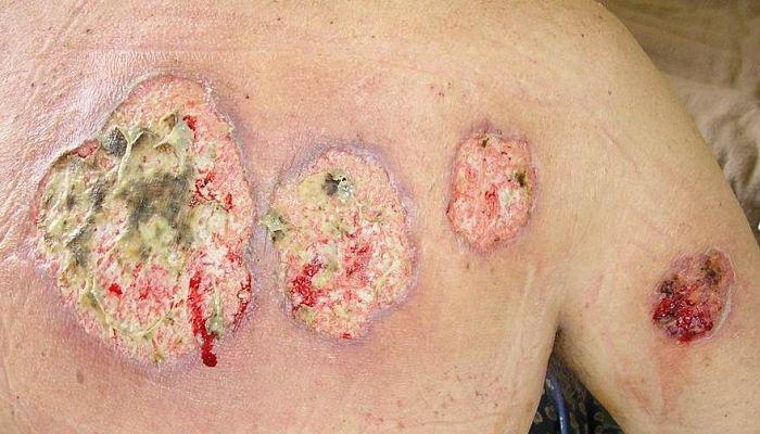 El pioderma gangrenoso