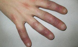 Sabañón   Factores De Riesgos, Síntomas, Diagnostico, Tratamiento