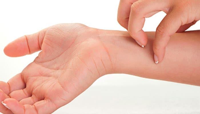La Sarna Causas Sintomas Tratamiento Prevencion