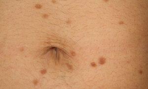 Úlcera Cutánea