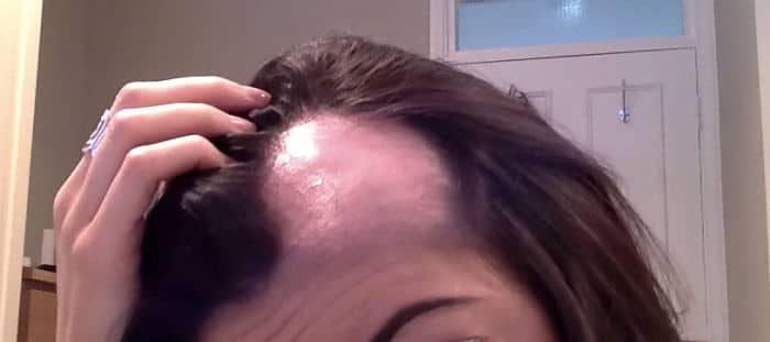 El síndrome del cabello anágeno suelto