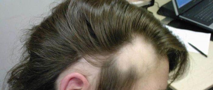 sindrome del cabello anágeno suelto