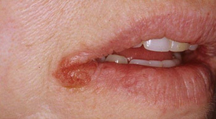 queilitis exfoliativa